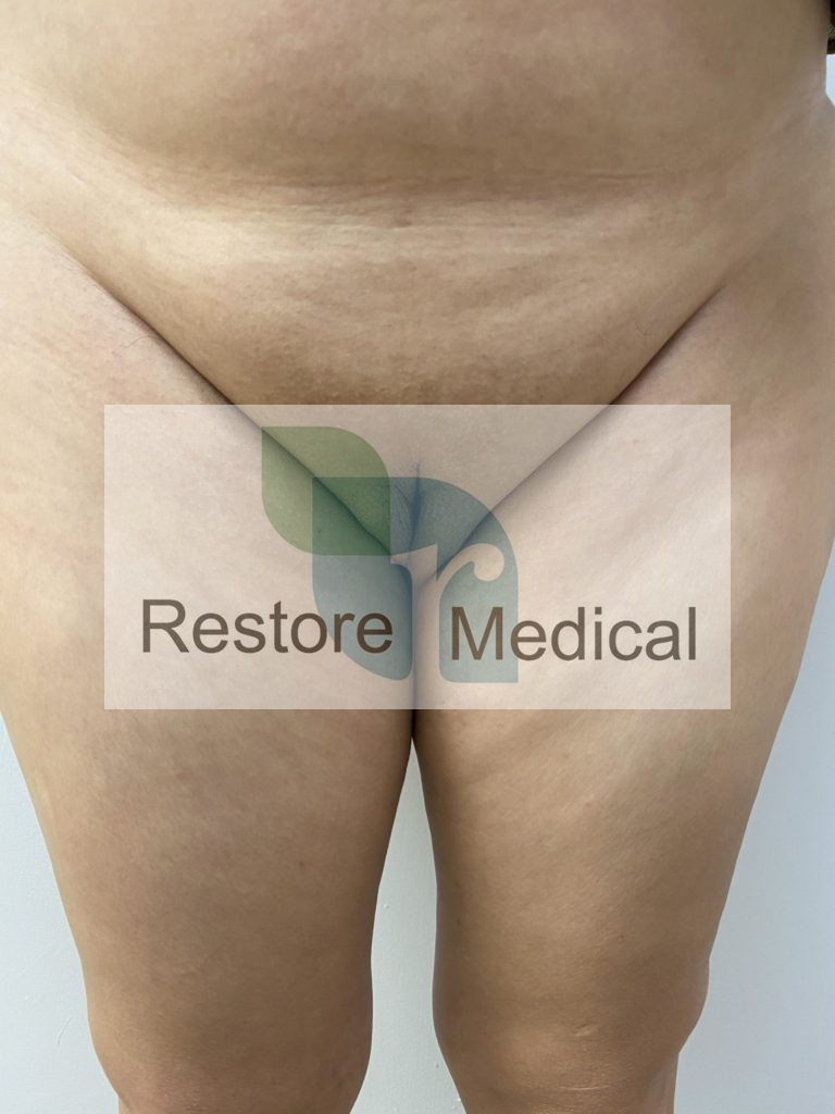 Male to Female Bottom Surgery Results 21