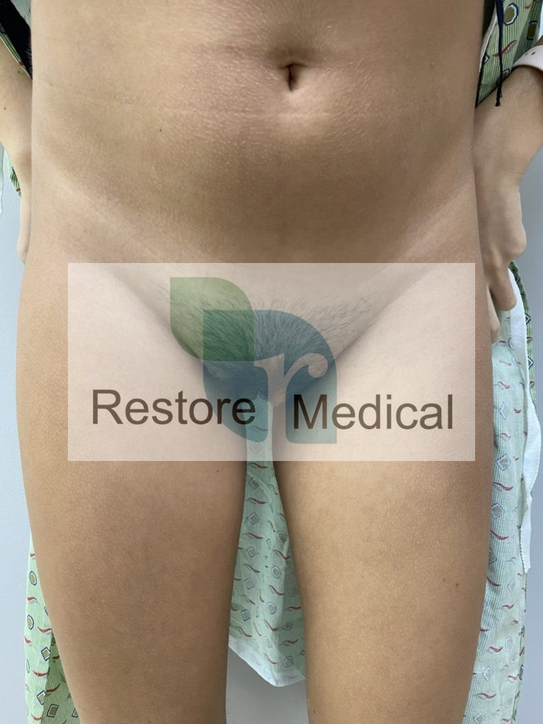 Male to Female Bottom Surgery Results 12