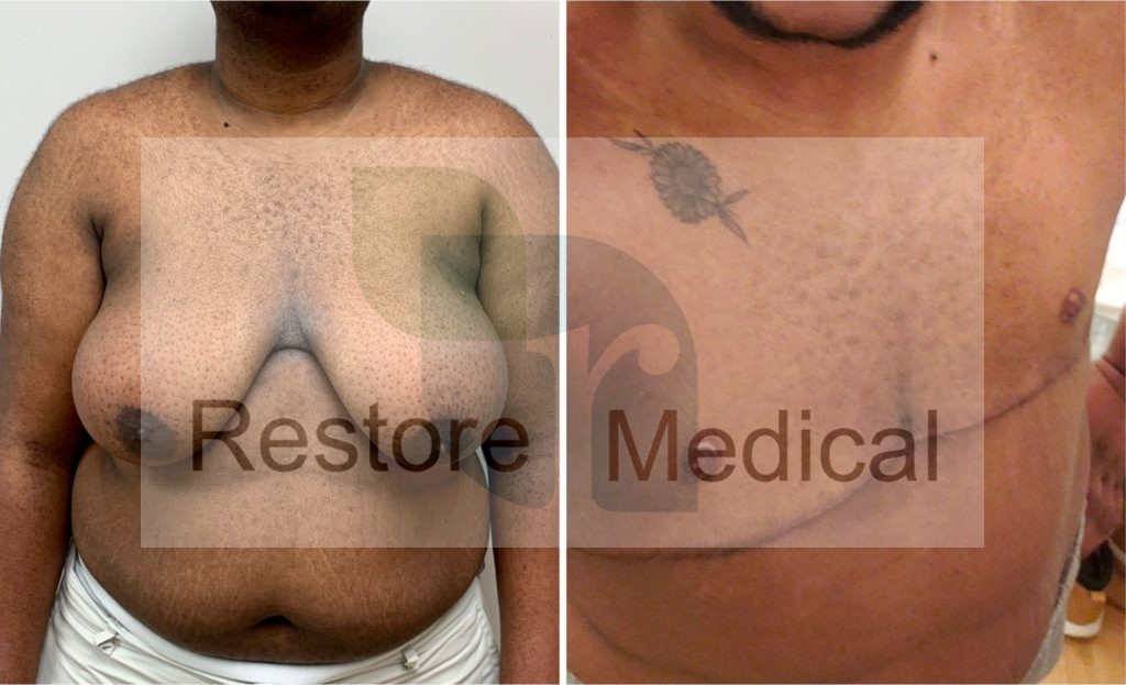 before and after restore medical center